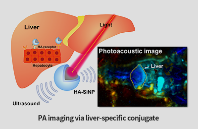 Enabling the In Vivo Photoacoustic Imaging of Livers
