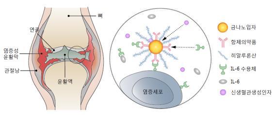 신생혈관생성을 억제하는 금나노입자 및 IL-6와 효과적으로 결합하는 항체의약품을 이용한 신개념 류마티스 관절염 치료 매커니즘. 금나노입자-항체의약품 복합제형에 의해 신생혈관생성이 억제되고 IL-6와 IL-6 수용체의 결합이 저해되어 관절염 치료 효능이 획기적으로 개선된다.