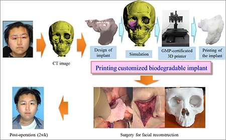 Professors Develop Customized 3D Printed Implant for Facial Reconstruction
